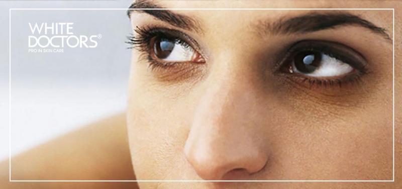 Xuất hiện quầng thâm ở vùng mắt